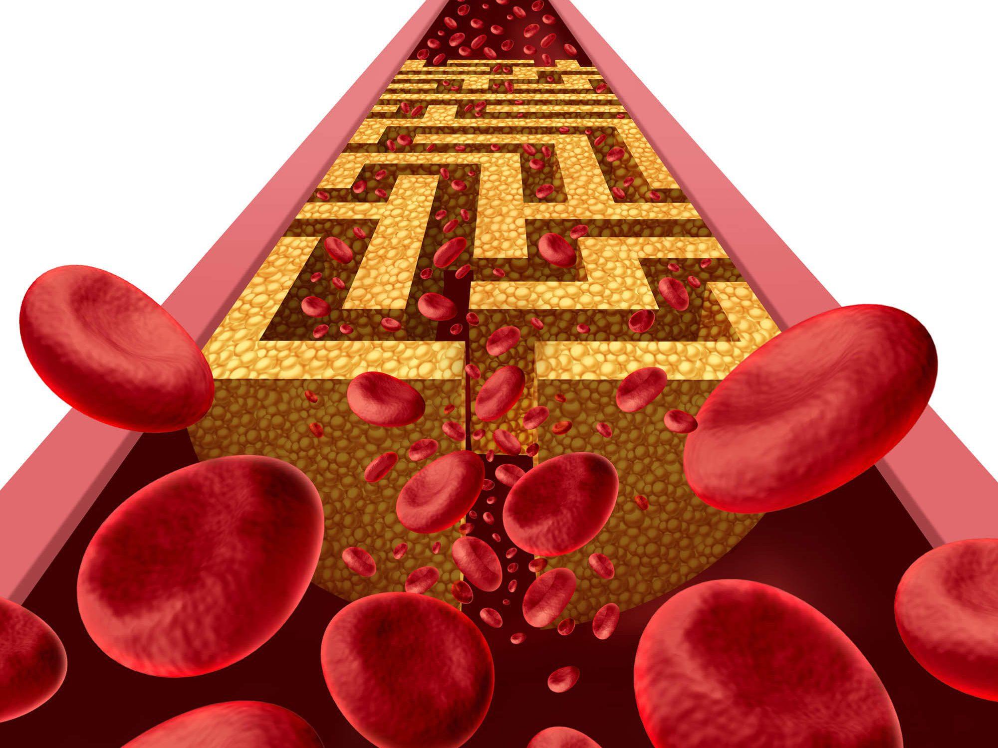 הפרעת שומנים בדם (דיסליפידמיה) והניתוח הבריאטרי