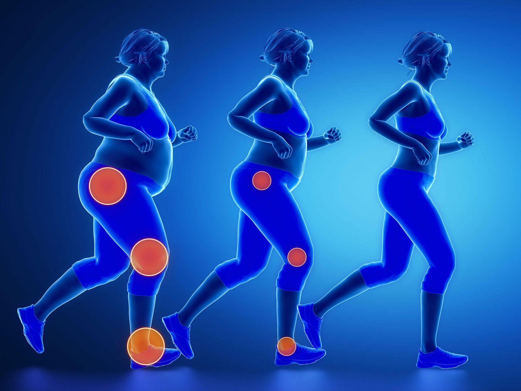 כאבי מפרקים, כאבי גב, השמנה והניתוח הבריאטרי