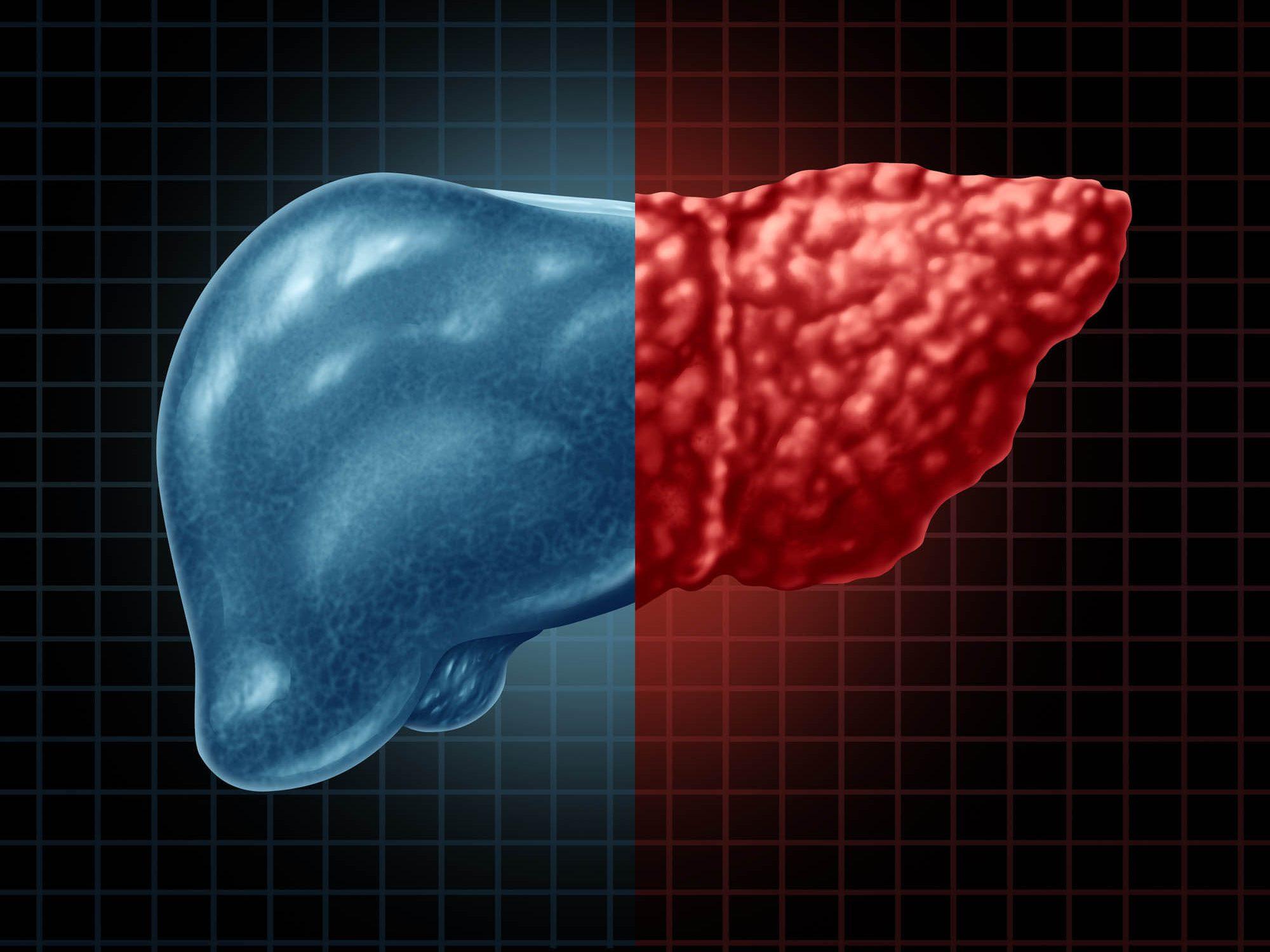מחלת הכבד השומני והניתוח הבריאטרי