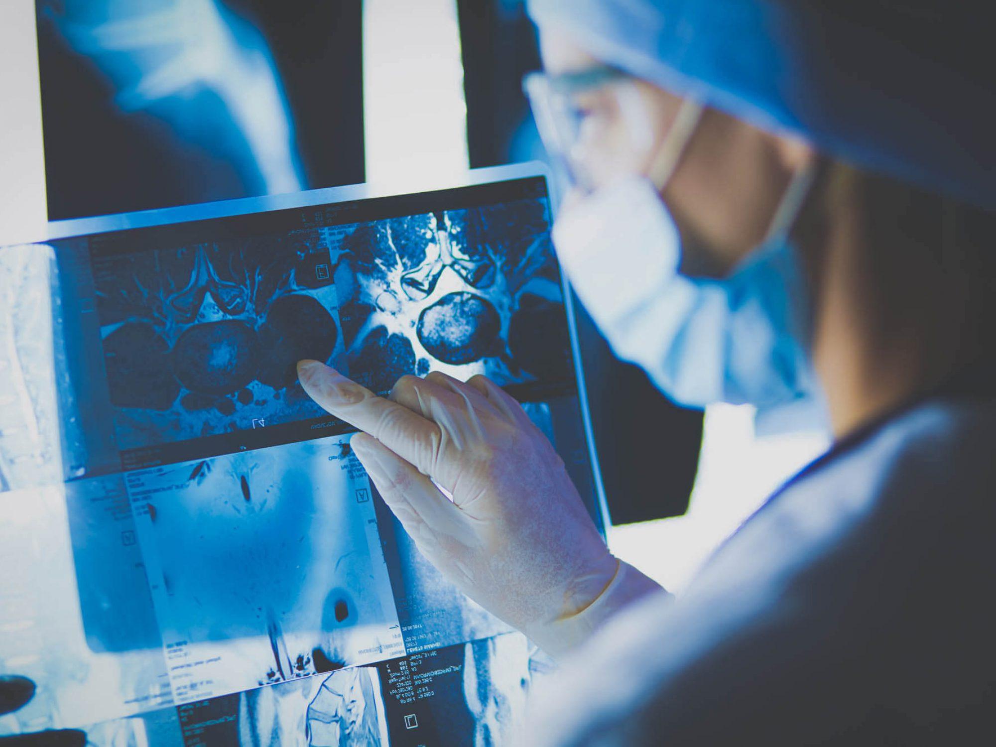 השמנה מגבירה את הסיכון לסרטן, האם ניתוח בריאטרי יכולה להוריד אותו?